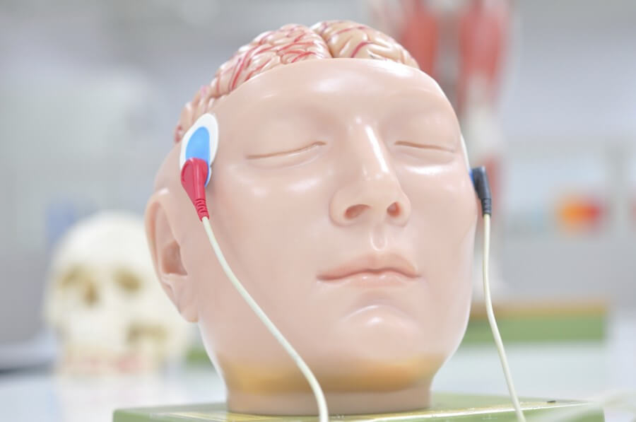 EEG (2)